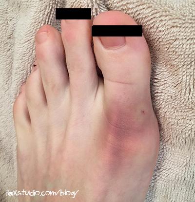 160415bruisedfoot